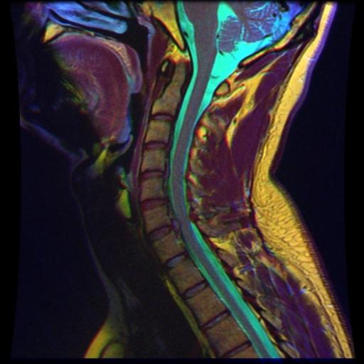 06_Cervical_MRI_scan_R_T1WFSE_G_T2WfrFSE_STIR_B